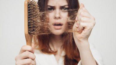 أسباب تساقط الشعر الشديد عند النساء ووصفات طبيعية لعلاجه في أسرع وقت