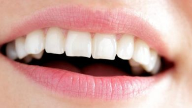 تبييض الأسنان في دقائق باستخدام مكونات طبيعية متوافرة في كل منزل