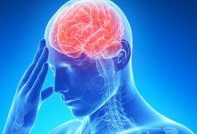 صورة دراسة تكشف علاقة ارتفاع نسبة الحديد بالسكتة الدماغية